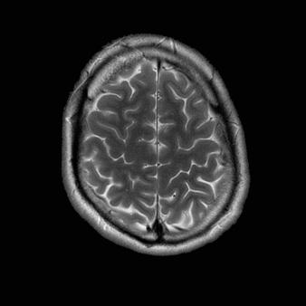 Image of the brain